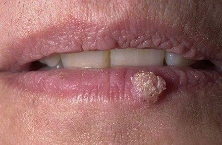 papilloma on the lip
